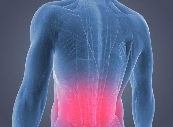 Back pain excercises